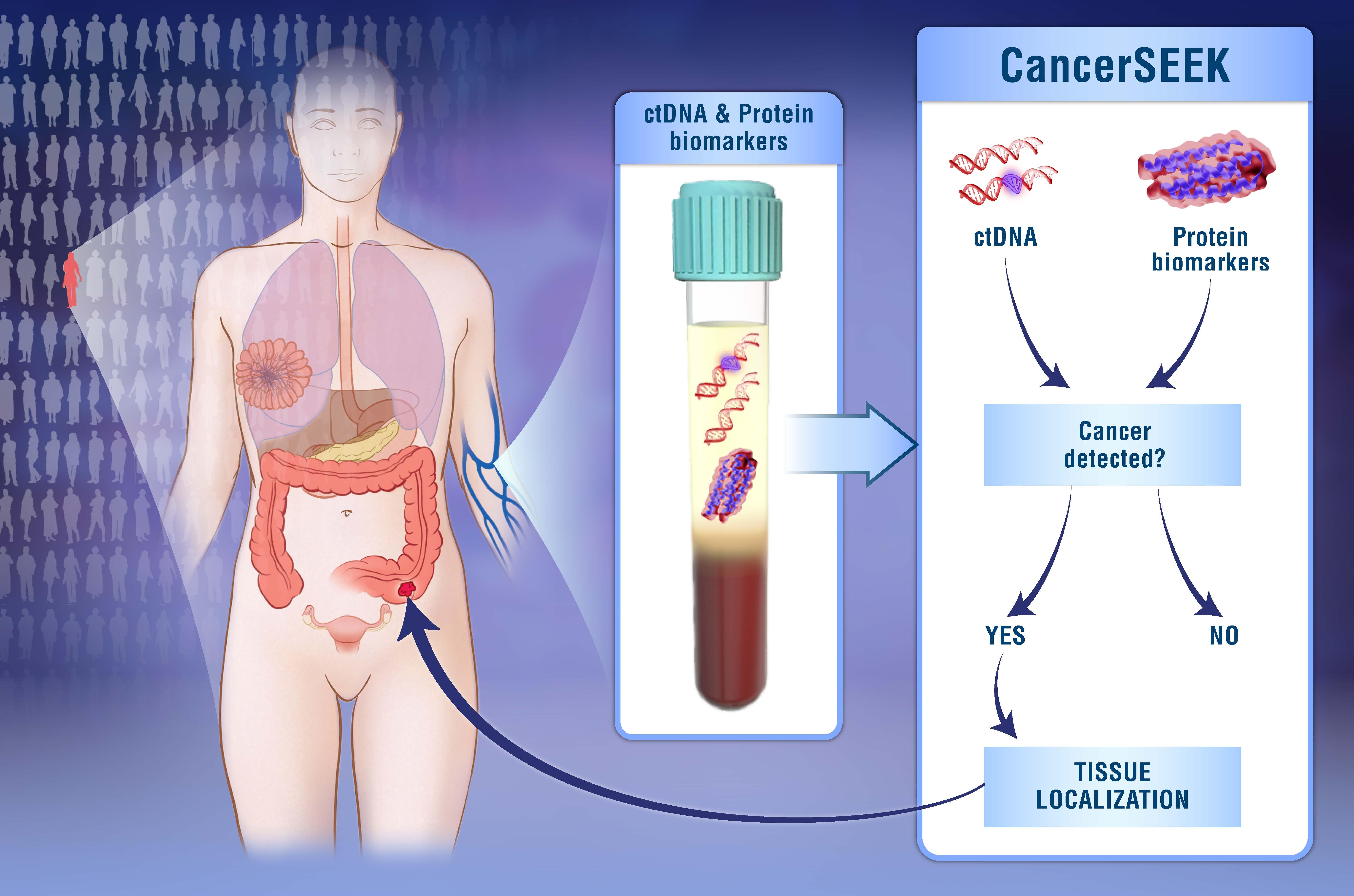 Διάγνωση καρκίνου με μια απλή εξέταση αίματος | Biology.gr